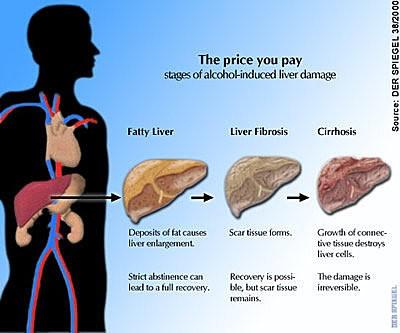 liver cirhrossis