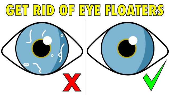 How To Get Rid of Eye Floaters